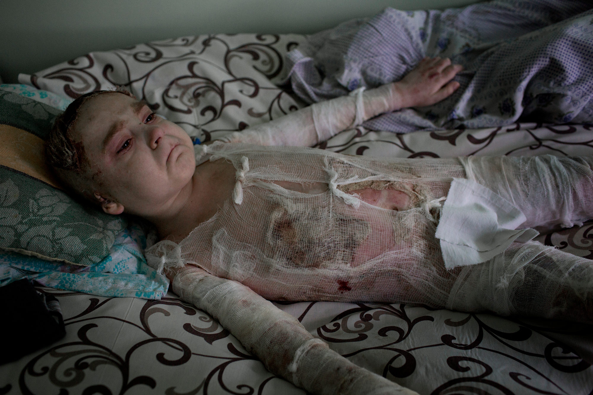 Ukraina Artem, 7 years old, lays in a hospital in Donetsk. He has third-degree burns covering 60 percent of the body a er a tank exploded near him and his cousin. His cousin Xantia, nine years old, died instantly. Artem's father watches over his son. Photo: Niclas Hammarström / Kontinent
